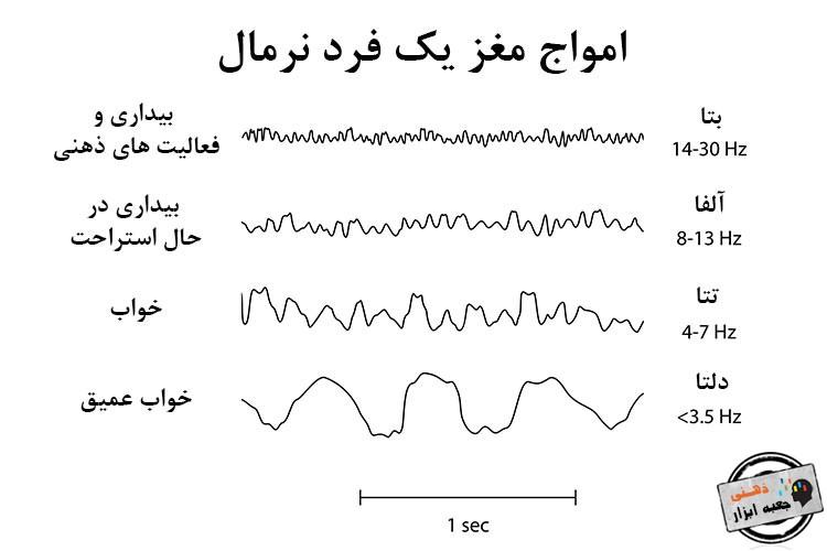 مراحل خواب و امواج مراحل مختلف خواب