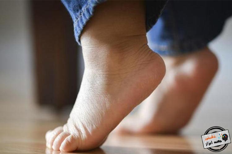 راه رفتن مکرر روی پنجه پا در کودکان اوتیستیک